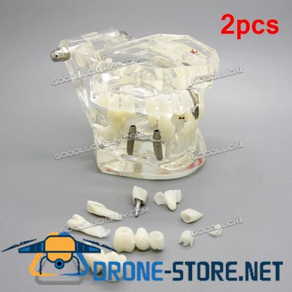 2pcs Dental Implant Study Analysis Demonstration Teeth Disease Model with Restoration
