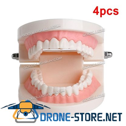 4pcs Dental Implant Disease Teeth Model Restoration Teaching Brushing Teeth Model